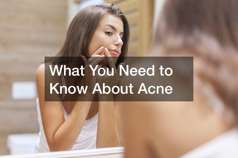 What You Need to Know About Acne